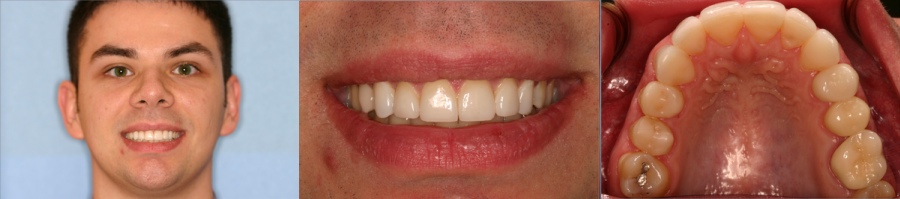 Dental Erosion After Treatment