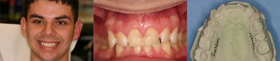 Dental Erosion Before